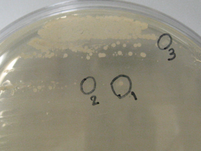 66. 微生物学的資源の発掘・探索 ~環境人間キャンパスの植生からの酵母の分離~